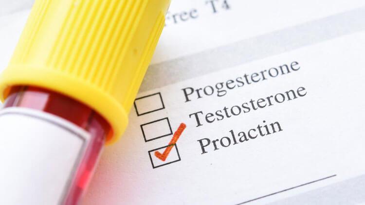 هورمون پرولاکتین چیست؟