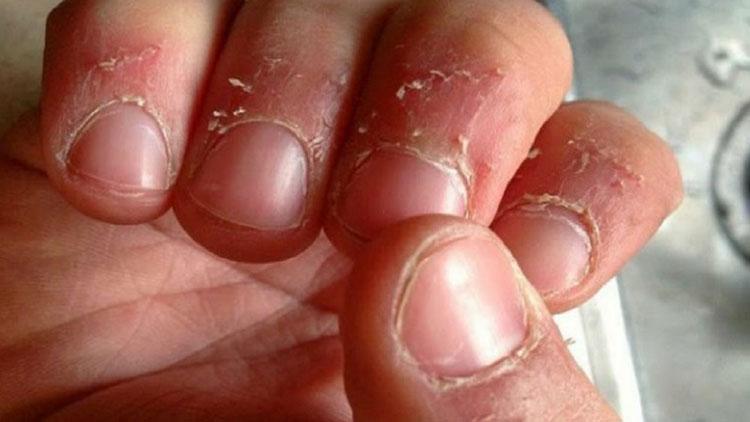 سوال و پاسخ ( علت ریشه ریشه شدن پوست اطراف ناخن و درمان آن )