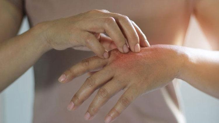 آیا خارش پوستیِ مزمن میتواند دلیلی برای افسردگی، افکار خودکشی و استرس باشد؟