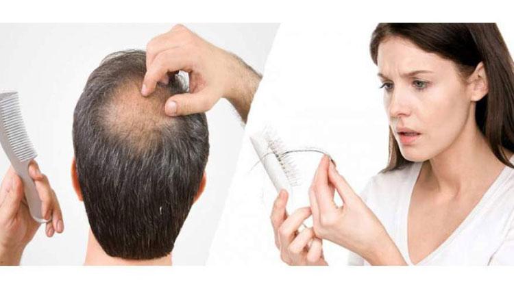 علت ریزش مو در زنان و مردان