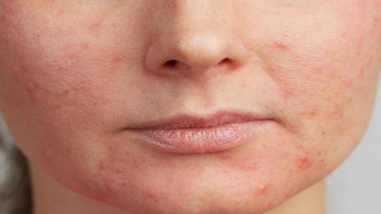این برجستگیهای صورتی کوچک روی صورت من چیست؟