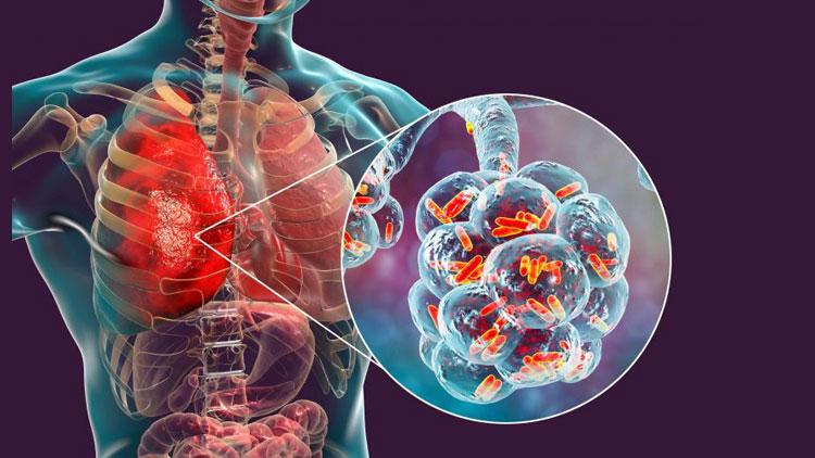 علائم پنومونی باکتریایی؛ درمان و پیشگیری