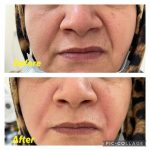 dr.mansourehabolfazli_165656131_840391329843846_4867684513815830542_n