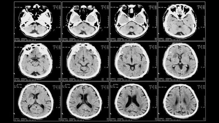 هنگام برقراری رابطۀ جنسی در مغز شما چه اتفاقی میافتد