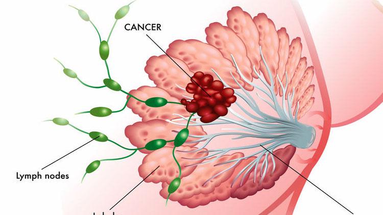 جراحی غدد لنفاوی در سرطان پستان