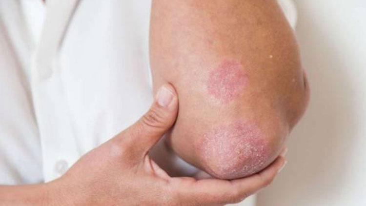 نشانههای قارچ پوست در تابستان